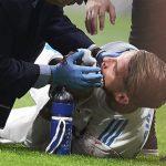 Ramos vỡ mũi, đổ máu do bị đá trúng mặt trong trận derby Madrid