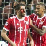 Ngôi sao Bayern chảy máu đầy mặt khi ghi bàn đánh bại Celtic