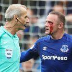 Rooney vẫn thi đấu dù chảy nhiều máu ở hốc mắt