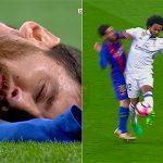 Messi đổ máu, gãy răng khi va chạm với Marcelo