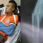Võ Huy Toàn chấn thương nghiêm trọng, nghỉ thi đấu năm tháng