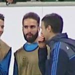 James Rodriguez bị phát hiện cười khi Real thua Wolfsburg